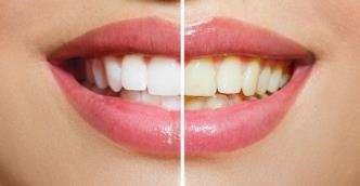 Weissere Zähne mit emmi-dent Ultraschall Zahnbürste