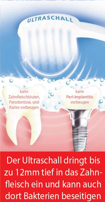 Der Emmi-Dent Ultraschall dringt bis zu 12mm tief in das Zahnfleisch ein
