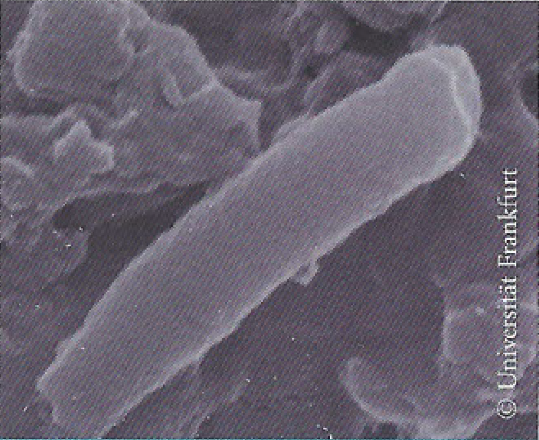 Emmi-Dent Ultraschall tötet Bakterien